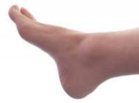 Possible Causes of Tarsal Tunnel Syndrome